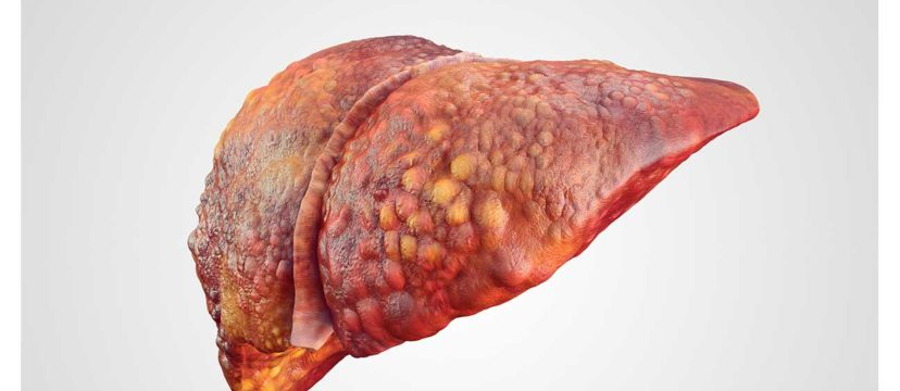 Liver Damage From Opioid Abuse