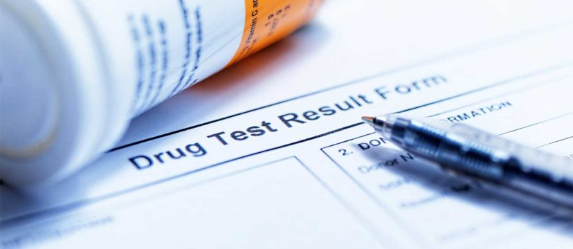 Suboxone Drug Test